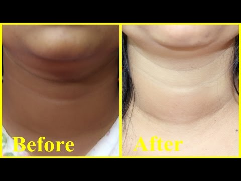 Dark Neck Don't Worry - Miracle Remedy to get Fair Neck/ 100% Effective Natural Home Remedy