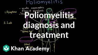 Poliomyelitis diagnosis and treatment   Infectious diseases   NCLEX-RN   Khan Academy