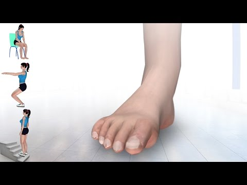 6 Exercises for High Ankle Sprain