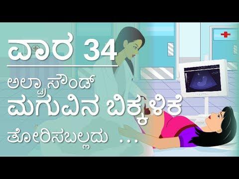 The Pregnancy   Kannada   Week by Week   Week 34