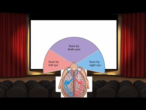 Brain Frame (2) - Visual Fields