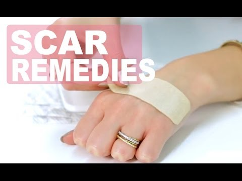 3 Quick Scar Remedies | Products That Fade Scars | NewBeauty Product Reviews