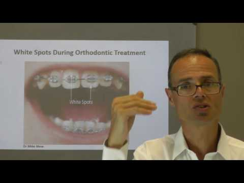 White Spots During Orthodontic Treatment by Dr Mike Mew