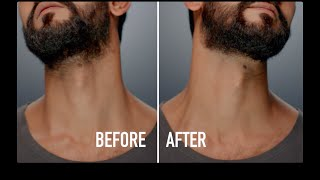 Beard Care | How to Tame the Neck Beard with Jack Black