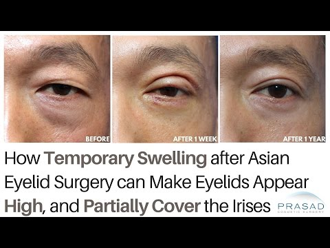 How Temporary Swelling from Asian Double Eyelid Surgery can Partially Cover Irises During Healing