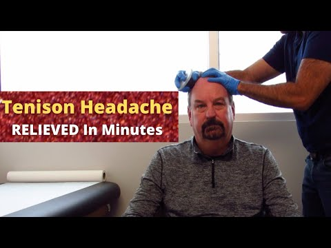 Chronic Tension Headache Relieved In Minutes