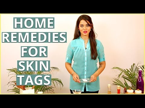 3 Best Natural Home Remedies To REMOVE SKIN TAGS At Home – DIY