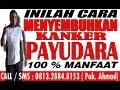OBAT KANKER PAYUDARA   081328848153   OBAT KANKER PAYUDARA HERBAL