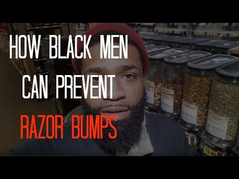 How Black Men Can Prevent Razor Bumps