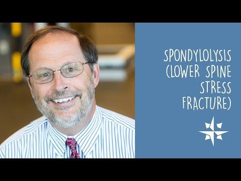 Spondylolysis (Low Spine Stress Fracture) / Douglas Cutter, MD, CAQSM
