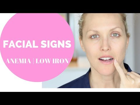 FACIAL SIGNS OF ANEMIA, LOW IRON | HEAVY PERIODS
