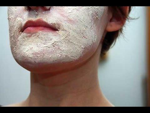 Face Eczema   Atopic Dermatitis   Eczema Dermatitis Rash Treatment