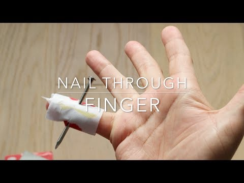 Nail through finger