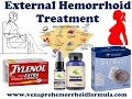 External Hemorrhoid Treatment