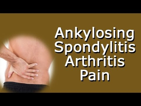 Ankylosing Spondylitis - Arthritis Pain In The Back, Hips, Shoulders, Knees