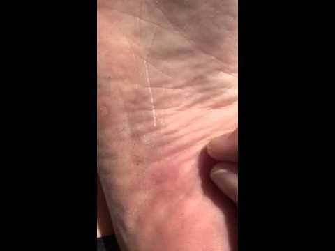 Hair splinter