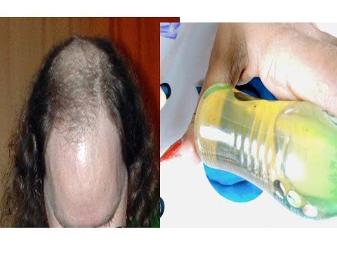 Hair Regrowth Remedy 100% Challenge / Easy to make Hair Oil
