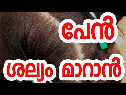 How to Get Rid of Lice Permanently | Natural Head Lice Treatment | Malayalam Health Tips
