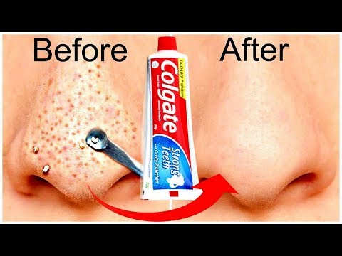 COLGATE Remove BLACKHEADS / WHITEHEADS at home in just 5 minutes-No more Blackheads-100% RESULT
