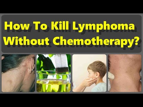 How To Kill Lymphoma Without Chemotherapy But With The Natural Remedies