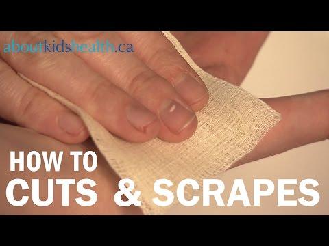 How to treat cuts and scrapes / Comment traiter les coupures et les éraflures