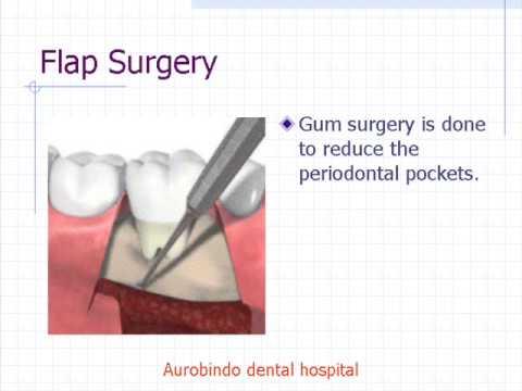 Flap surgery cost / Gum surgery cost /Aurobindo dental hospital