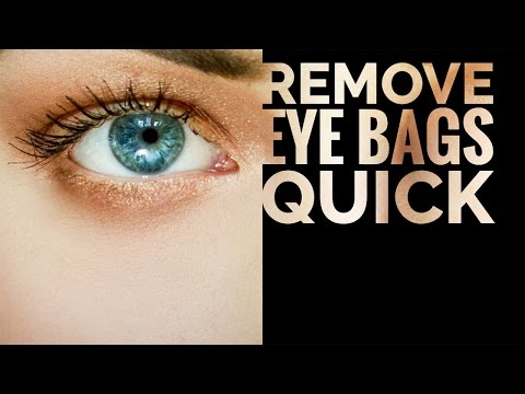 Easiest Way to Remove Bags from Under the Eyes and Dark Circles in Photoshop