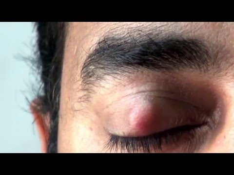 Surgery upper eyelid  Before and After