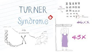 What is Turner Syndrome? Animated Explanation Video