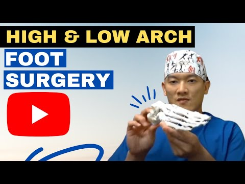 High arch & Low arch foot surgery