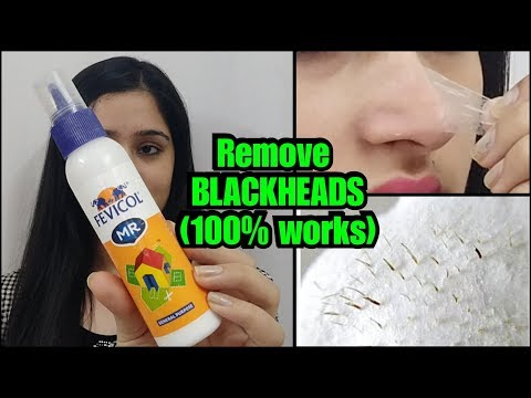 HOW TO REMOVE BLACKHEADS PERMANENTLY - EASY AND PAINLESS METHOD