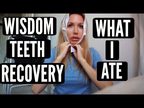 WISDOM TEETH RECOVERY + WHAT I ATE