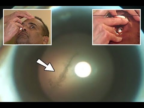 OMG! Man had brain eating tape worm living in his eye