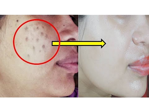 Acne Marks Remove from Normal to Dry Skin by Amazing Tips