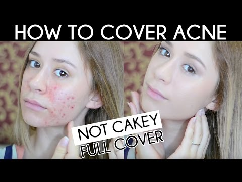 HOW TO COVER ACNE SCAR | Not Cakey Acne Coverage Foundation Routine