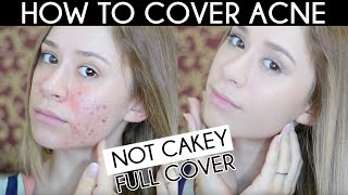 How To Cover Acne Scar Not Cakey Acne Coverage Foundation Routine
