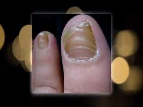 Get rid of that yellow toenails