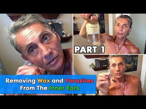 Removing Wax and Parasites From The Inner Ears Part 1 | Dr. Robert Cassar