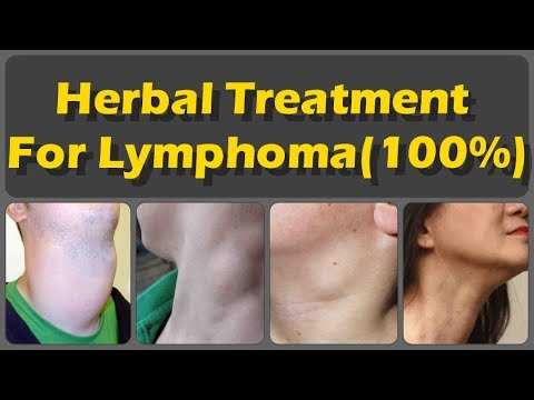 Top 7 Herbal Treatments for Lymphoma And Common Signs Of Lymphoma And Risk Of Lymphoma Cancer