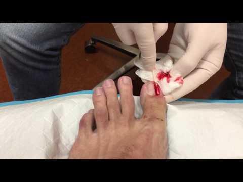 Ingrown toenail removal and phenol application on big toe