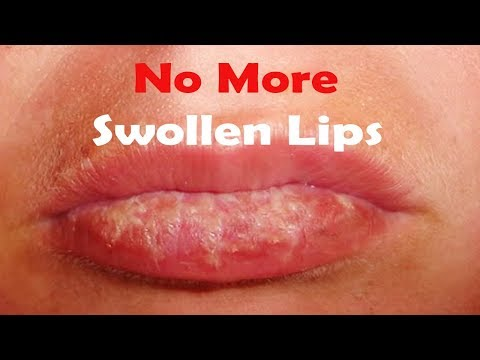 Cure Swollen Lips At home Use This simple remedies