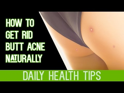 How To Get Rid Of Butt Acne Naturally - How To Treat Acne on Buttocks - How To Eliminate Butt Acne