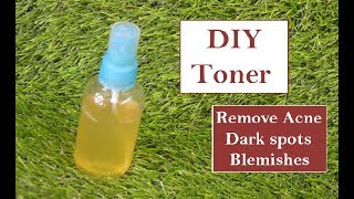 DIY Toner for Acne | Homemade Face Toner for Oily Skin | Remove Pimples, Blemishes, Dark Spots