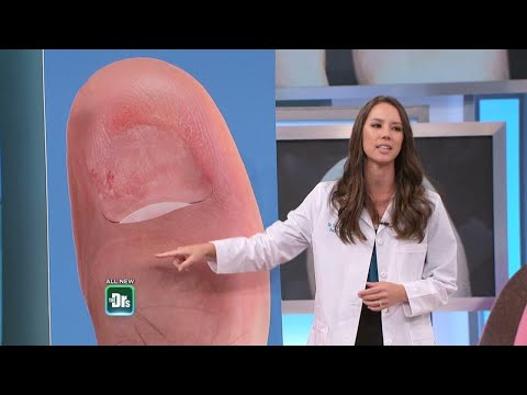 What To Do if Your Toenail Falls Off