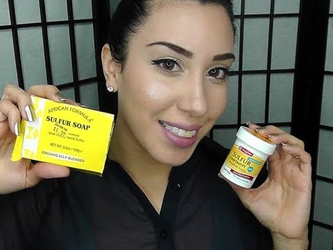 Clear Acne FAST Using Sulfur !!! ♥