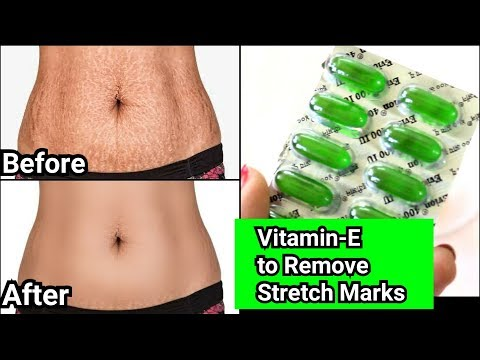 Remove Stretch Marks Completely from all body Parts - Easy remedy