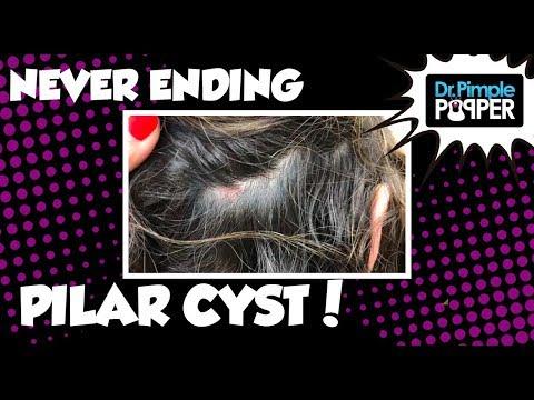 A Never Ending Pilar Cyst