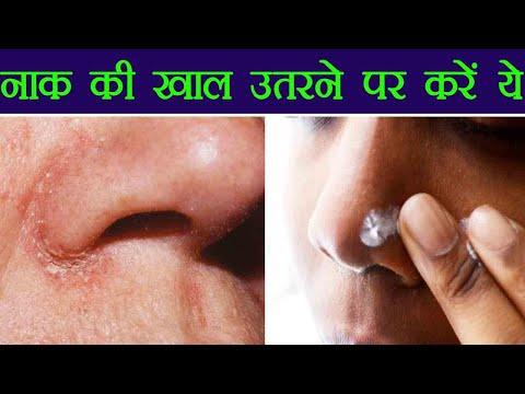 Nose Dry Skin Remedies   नाक की खाल उतरने पर अपनाएं ये तरीक़े   Boldsky