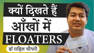 Top 10 Homeopathic Medicines to cure Eye Floaters (Muscae Volitantes