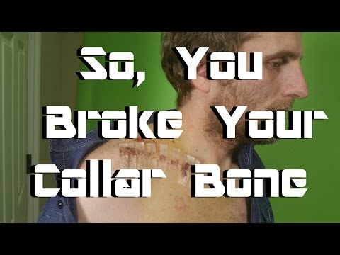 So You Broke Your Collar Bone - Advice from Someone Who's Done it Twice.